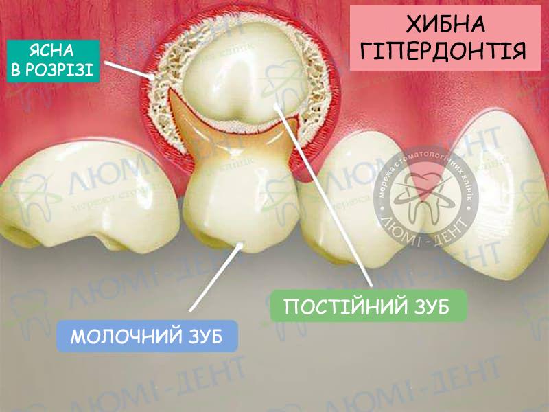 Другий ряд зубів фото ЛюміДент
