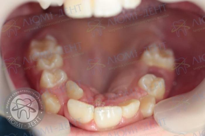 Зуби на піднебінні фото ЛюміДент