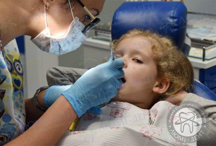 Висип у роті у дорослих фото ЛюміДент