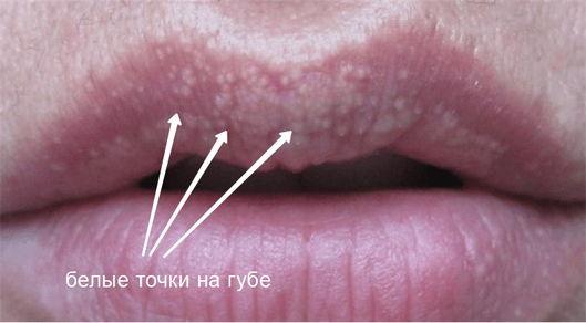 Белая сыпь во на губе фото Люмидент