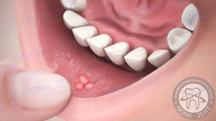 Білий висип у роті фото ЛюміДент