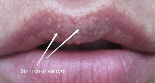 білий висип на губі фото Люмідент