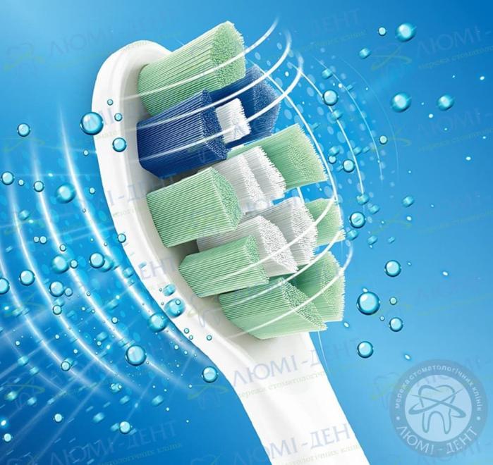ультразвуковая зубная щетка фото ЛюмиДент
