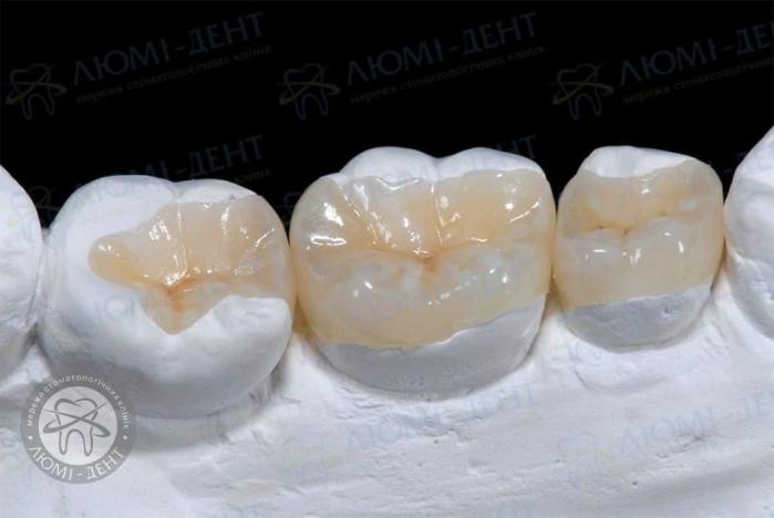 Какие бывают пломбы на зубы фото ЛюмиДент