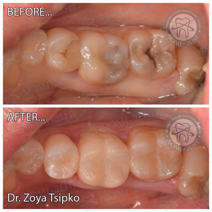 Виды пломб для зубов фото ЛюмиДент