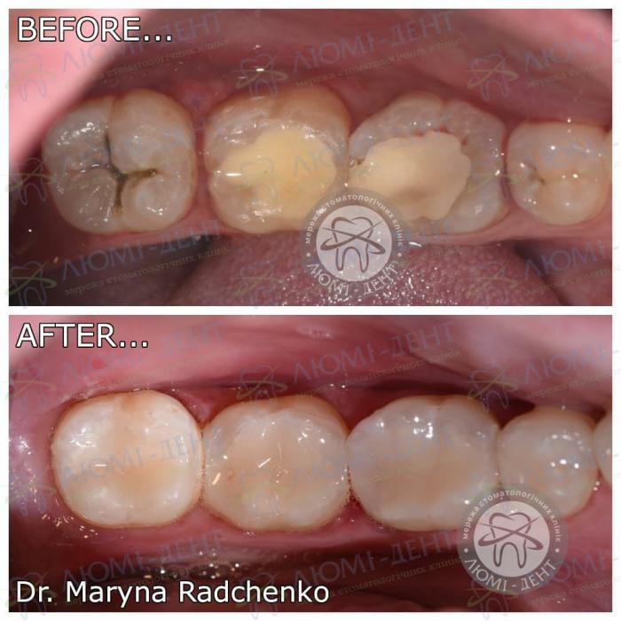 Виды пломб на зубы фото ЛюмиДент