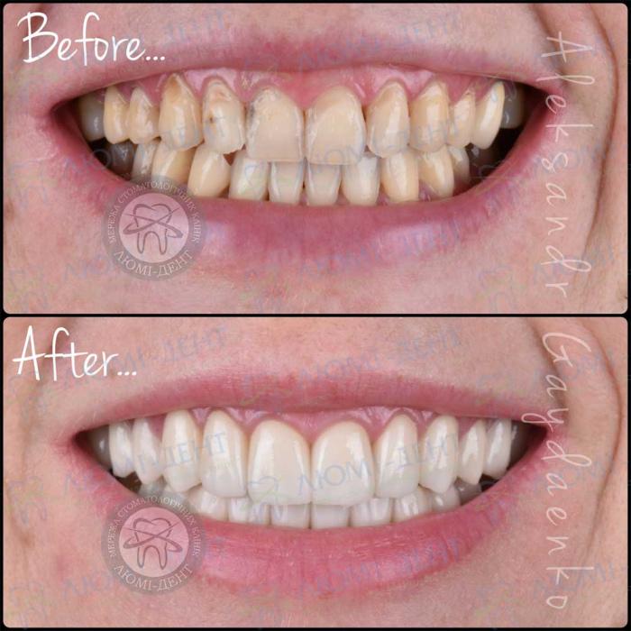 люмініри на криві зуби фото ЛюміДент