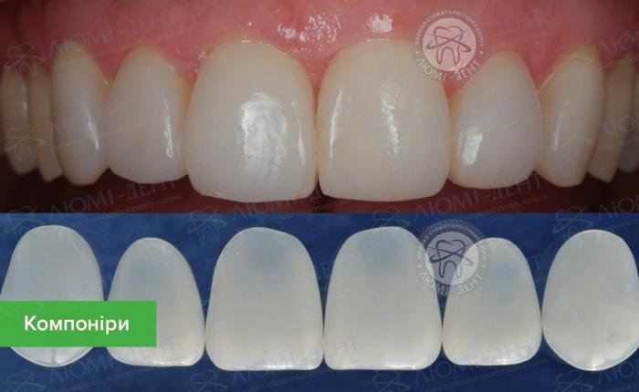 як ставлять вініри на криві зуби фото ЛюміДент