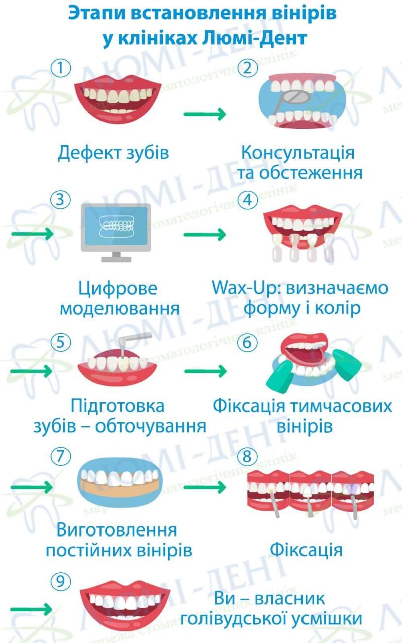 чи ставлять вініри на криві зуби фото ЛюміДент