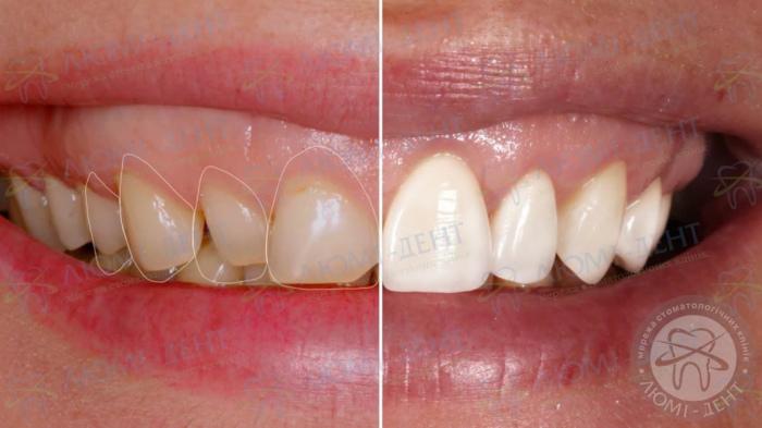 вініри на криві зуби фото ЛюміДент