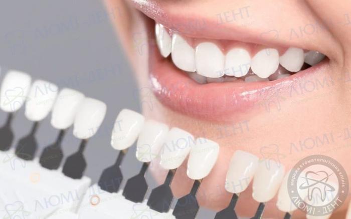 вирівнювання зубів вінірами фото ЛюміДент