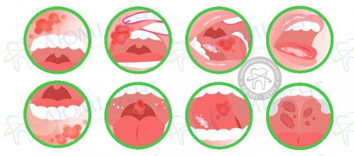 як прискорити загоєння рани в роті фото ЛюміДент