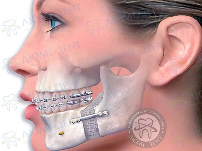 Артрит скронево нижньощелепного суглоба фото ЛюміДент