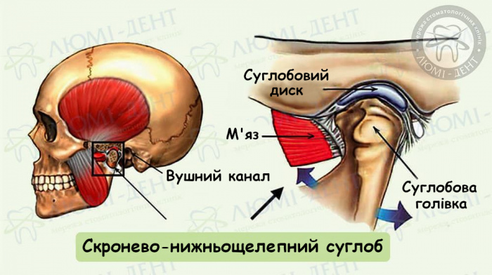 Дисфункція скронево нижньощелепного суглоба фото ЛюміДент