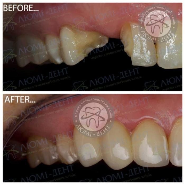 Зубний Міст Імплант фото Люмі-Дент