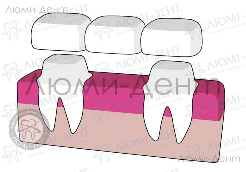 Bridge on teeth photo Lumident