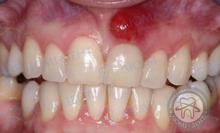 Зубной свищ фото ЛюмиДент