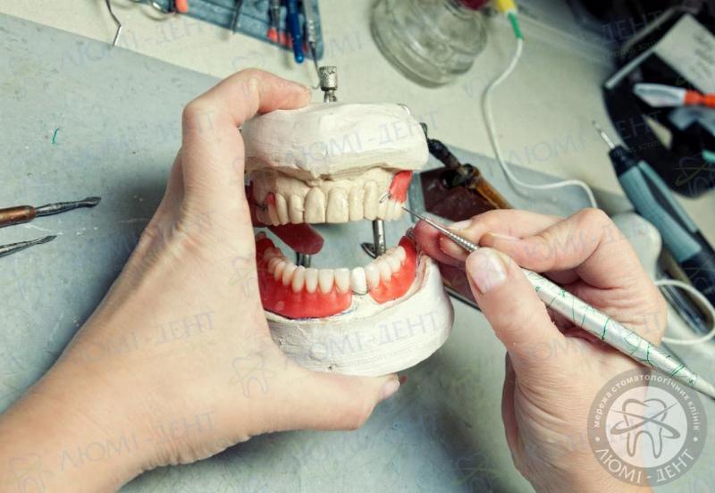 как делают зубные протезы фото ЛюмиДент
