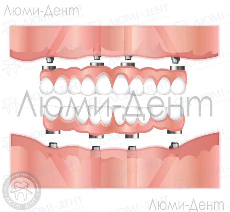 какие бывают протезы зубов фото ЛюмиДент