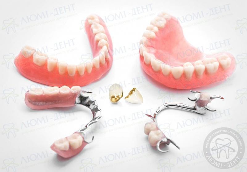 протезы зубов фото ЛюмиДент