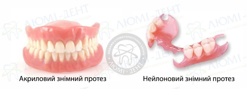 верхній знімний зубний протез фото ЛюміДент