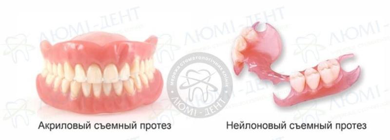 верхний съемный зубной протез фото ЛюмиДент
