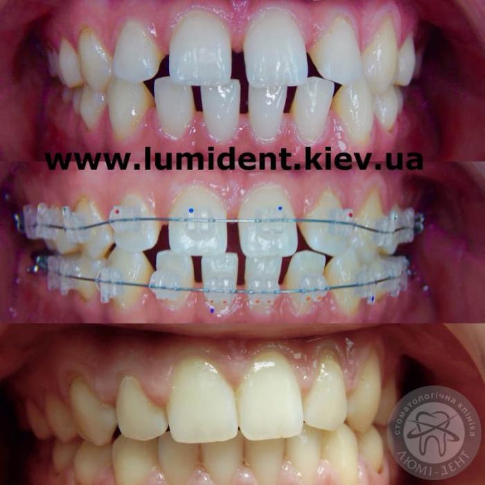 Клініка ортодонтія ортодонт фото Київ Люмідент