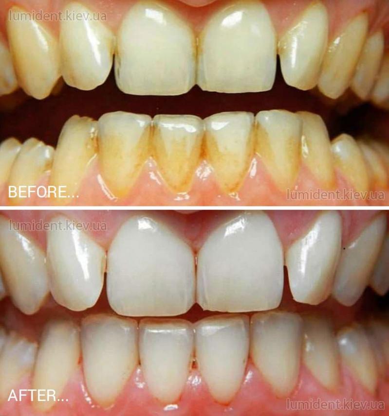 Гігієнічна чистка зубів у стоматолога Київ Люмі-Дент