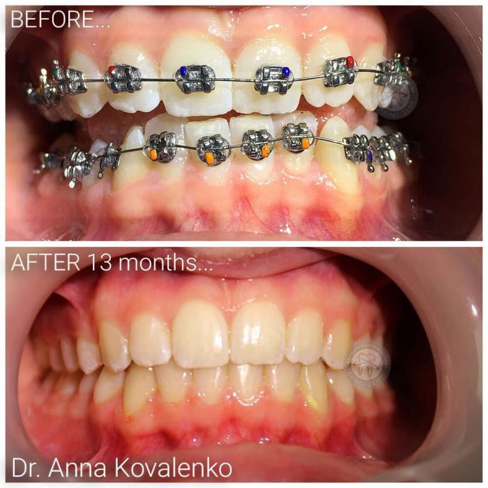 Ортодонт стоматолог детский врач исправление прикуса Киев Люми Дент