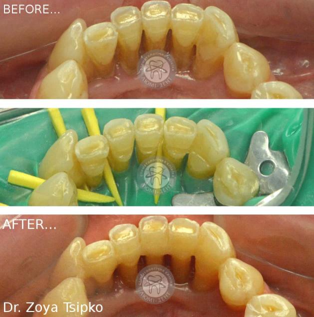 Укрепление зубов Киев фото картинки