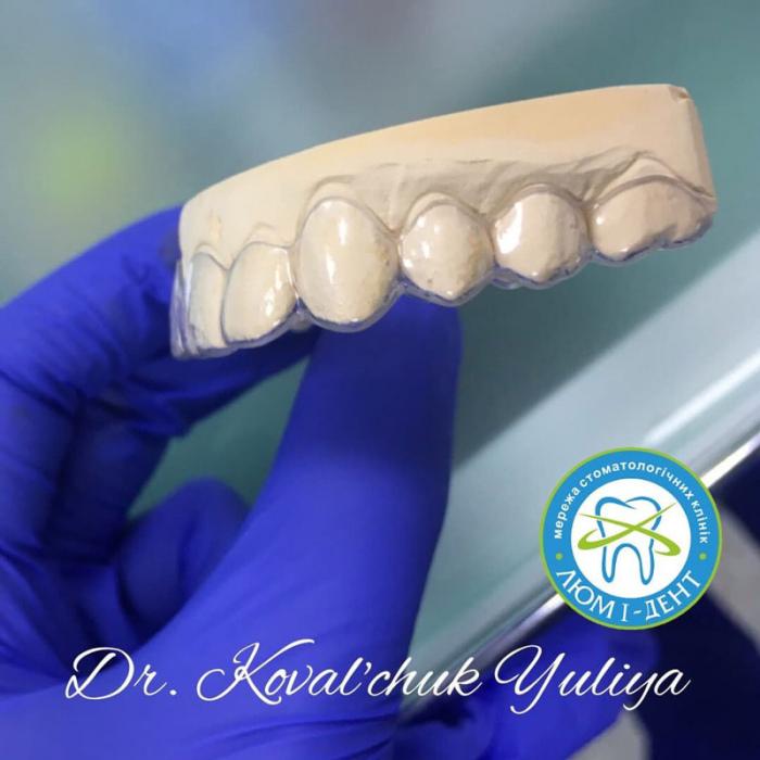 Элайнеры зубные капы на зубы фото Киев Люми-Дент