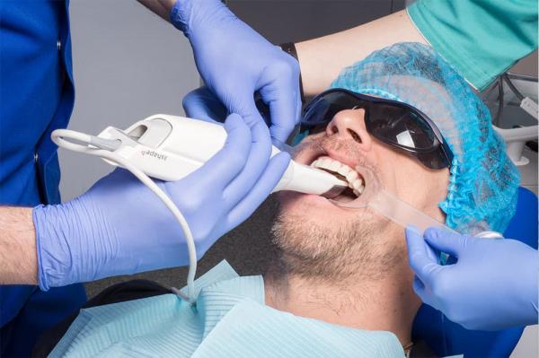 Цифрове сканування в стоматології Київ фото сканер Люмі-Дент
