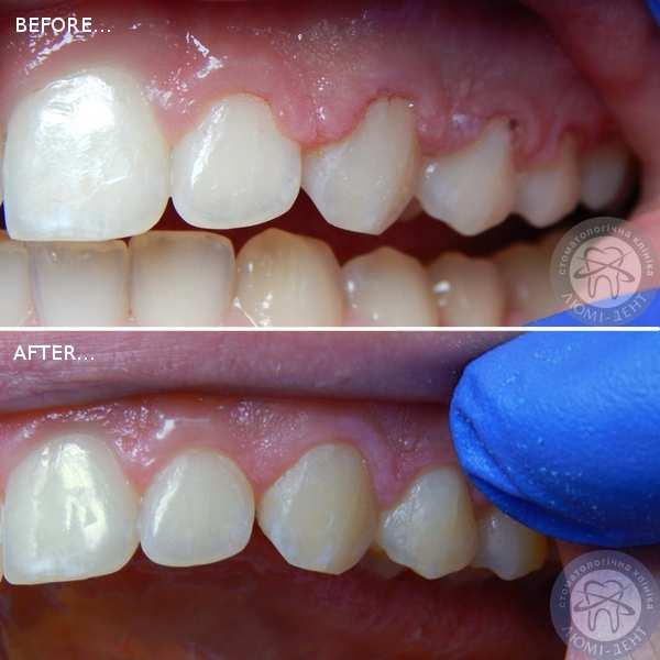лазерна стоматологія