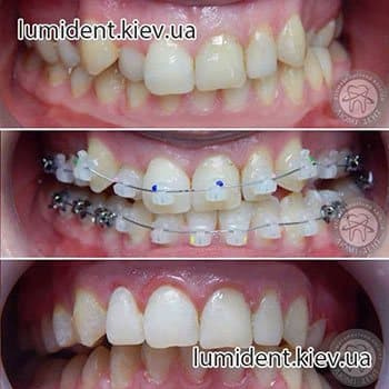 Фіксація хиткого зуба в клініці києва Люмі-Дент