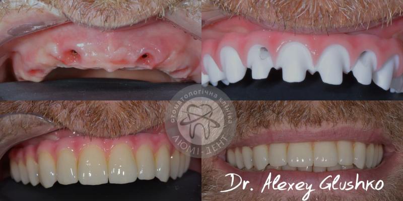 Имплантация зубов за 1 день импланты Киев Люми-Дент