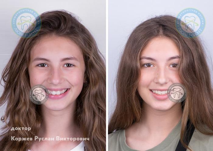 Брекеты для подростка фото Киев Люми-Дент