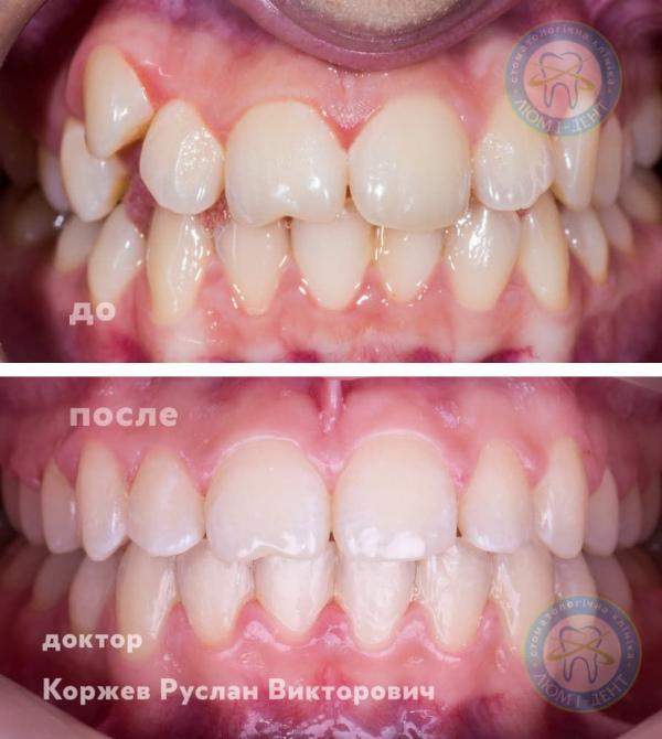 Кривые зубы у взрослых исправление фото Киев Люми-Дент