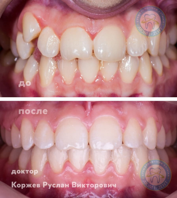 Криві зуби у дорослих виправлення фото Київ Люмі-Дент