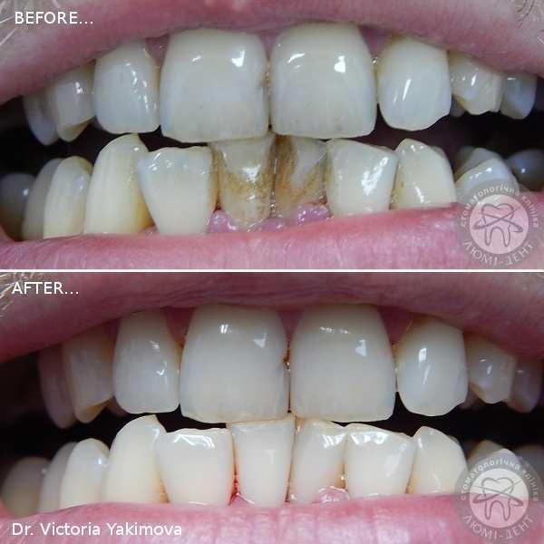 Чищення зубів до після Люмі-Дент