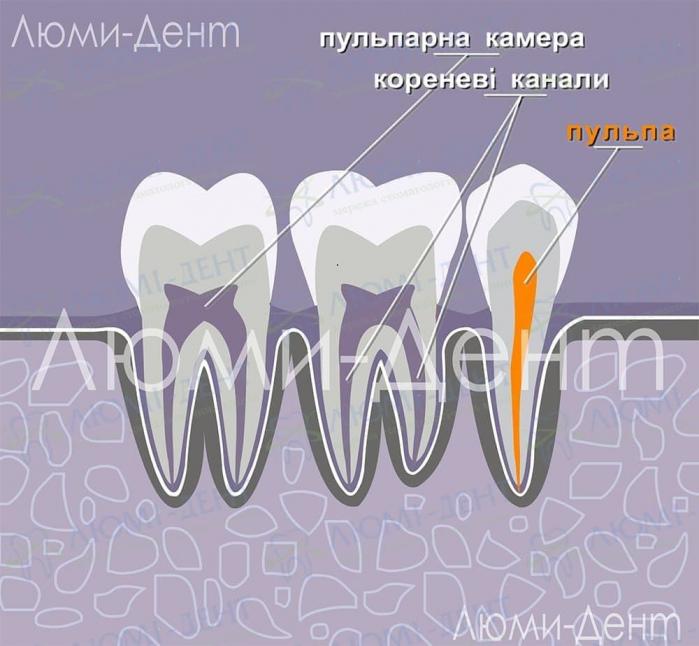 Видалення нерва зуба лікування каналів фото Люмі-Дент