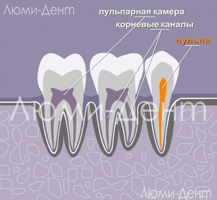 Удаление нерва зуба лечение каналов фото Люми-Дент