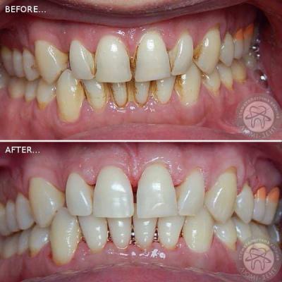 чистка зубів ультразвуком в стоматології київ люмідент