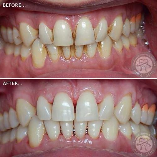 Гігієнічна чистка зубів у стоматолога фото Київ Люмі-Дент