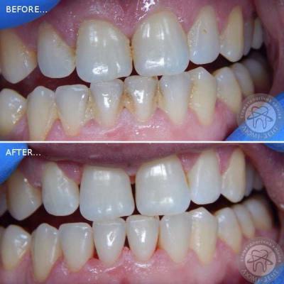 Ультразвукова чистка зубів фото київ Люмідент