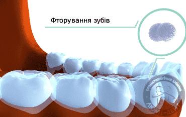 Ремінералізація зубів