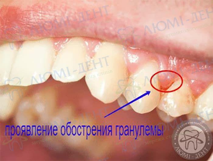 Что такое гранулема зуба фото Люми-Дент