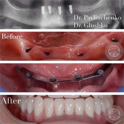 протезирование зубов киев, фото, до и после