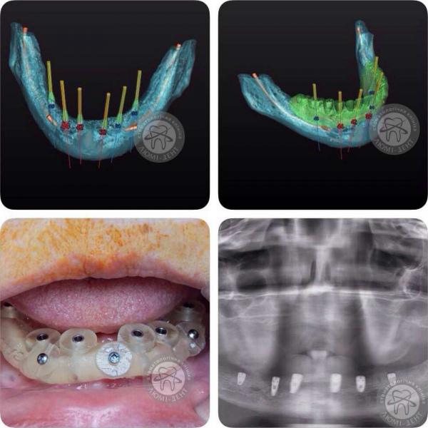 Имплантация зубов видео фото Люми-Дент