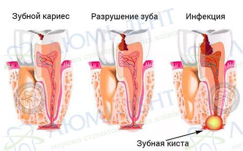 Зубна кіста лікування фото Київ Люмі-Дент