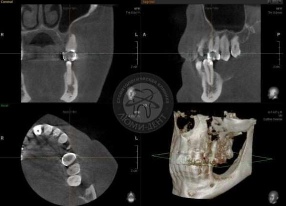 Комп'ютерна томографія зубів фото Київ Люмі Дент